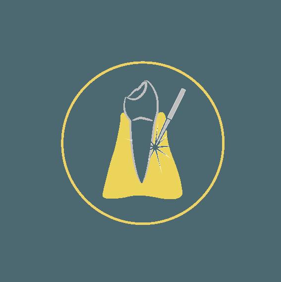 BENACUS DENTAL CLINIQUE - PRESTAZIONI - PARODONTOLOGIA-LASER